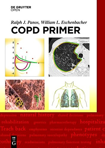 Large book cover: A COPD Primer