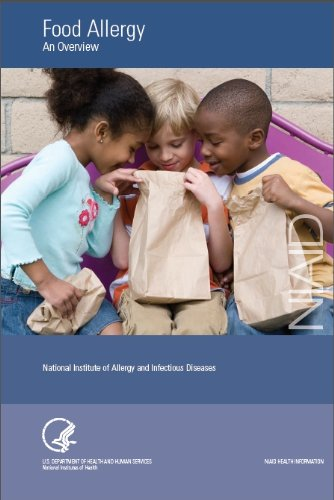 Large book cover: Food Allergy: An Overview